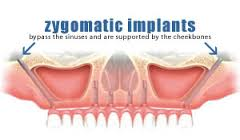 zygoma dental implants