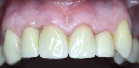 periodontist results