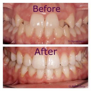 happy patients before and after