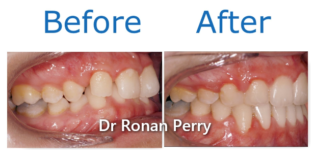 orthodontist Dublin before and after