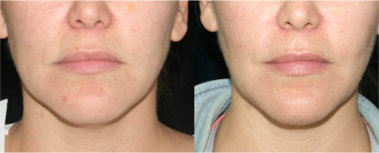 buccal fat removal and cost